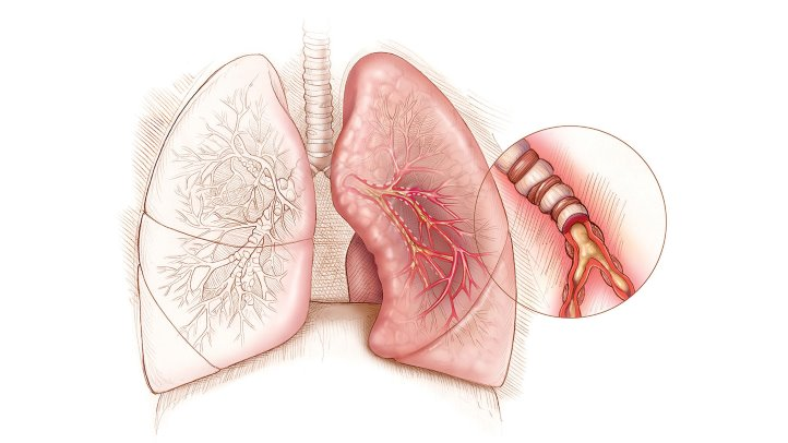 lungs with severe asthma - what to do if it gets out of control