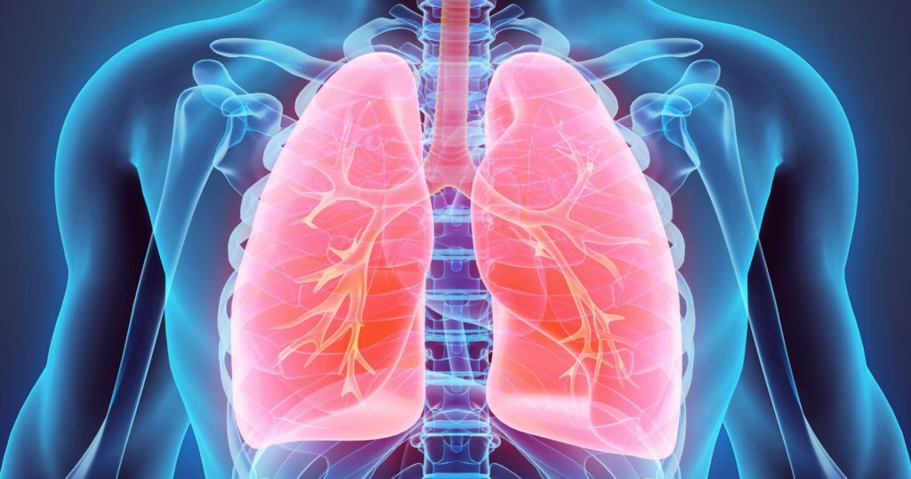 xray of lungs with bronchitis - how are asthma ang bronchitis linked