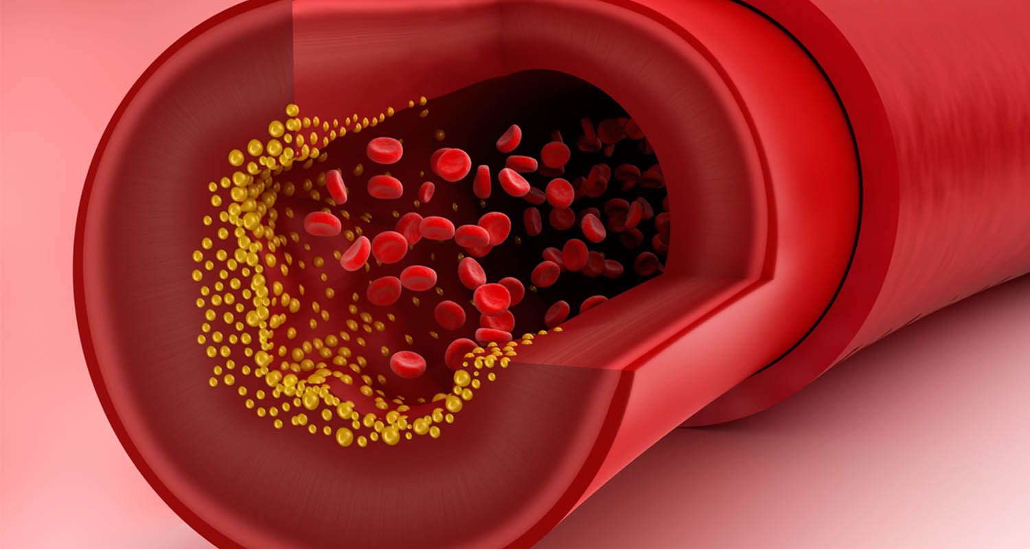across the an artery - everything-you-need-to-know-about-cholesterol